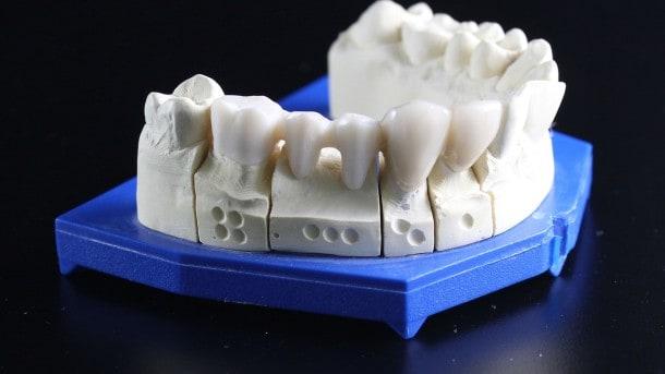 carillas dentales y porcelana