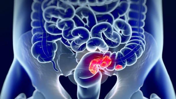 consejos para la prevencion de cancer de colon